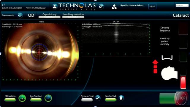Quadro di comando computerizzato del laser.