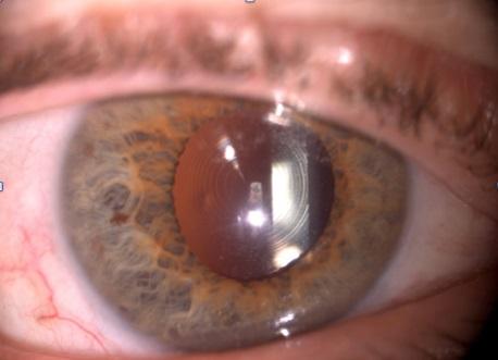 Lente intraoculare bifocale per rimuovere del tutto gli occhiali.